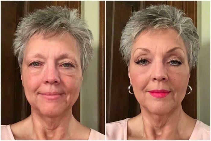 Возрастные проблемы, появляющиеся у женщины на лице после 50 лет