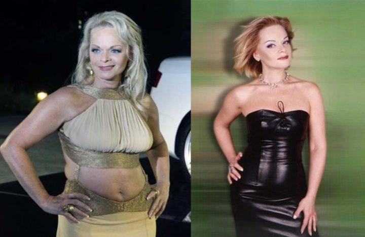 долина похудела до и после фото