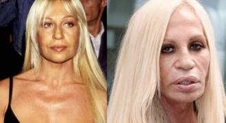 Миниатюра к статье Донателла Версаче в молодости — до и после