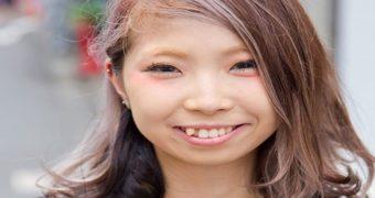 Миниатюра к статье Зачем японцы специально искривляют зубы или делают их черными