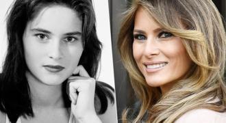Миниатюра к статье Мелания Трамп в молодости — до и после пластики