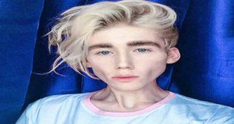 Миниатюра к статье Этот парень довел себя до анорексии ради моды
