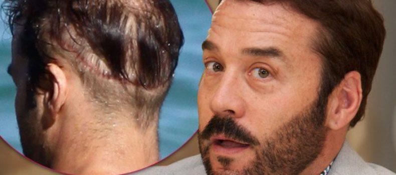 Миниатюра к статье Звезды, которые сделали себе пересадку волос