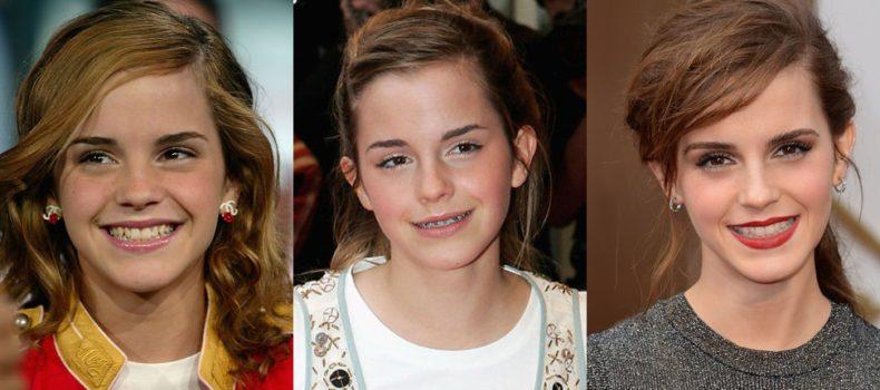 Миниатюра к статье Звезды в брекетах: фотографии знаменитостей до и после