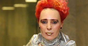 Миниатюра к статье Новая внешность Жанны Агузаровой после пластики удивила (фото)
