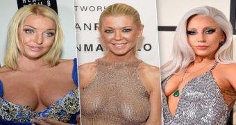 Миниатюра к статье 8 знаменитостей с обвисшей грудью