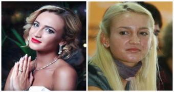 Миниатюра к статье Без фотошопа и грима! Как выглядят российские звезды на самом деле